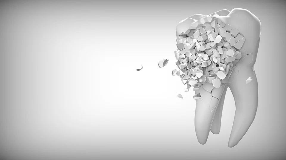 Zahnschmerzen trotz Betäubung (zahnärztliche Lokalanästhesie) - Schmerzen beim Zahnarzt